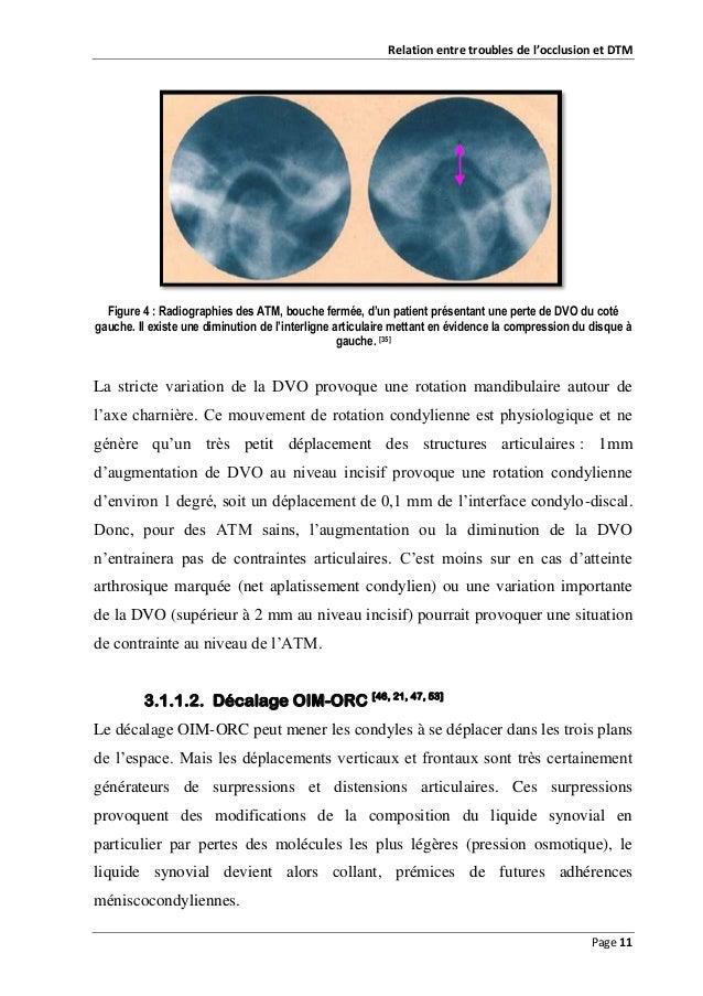 Relation entre troubles de l'occlusion et DTM  Figure 4 : Radiographies des ATM, bouche fermée, d'un patient présentant un...