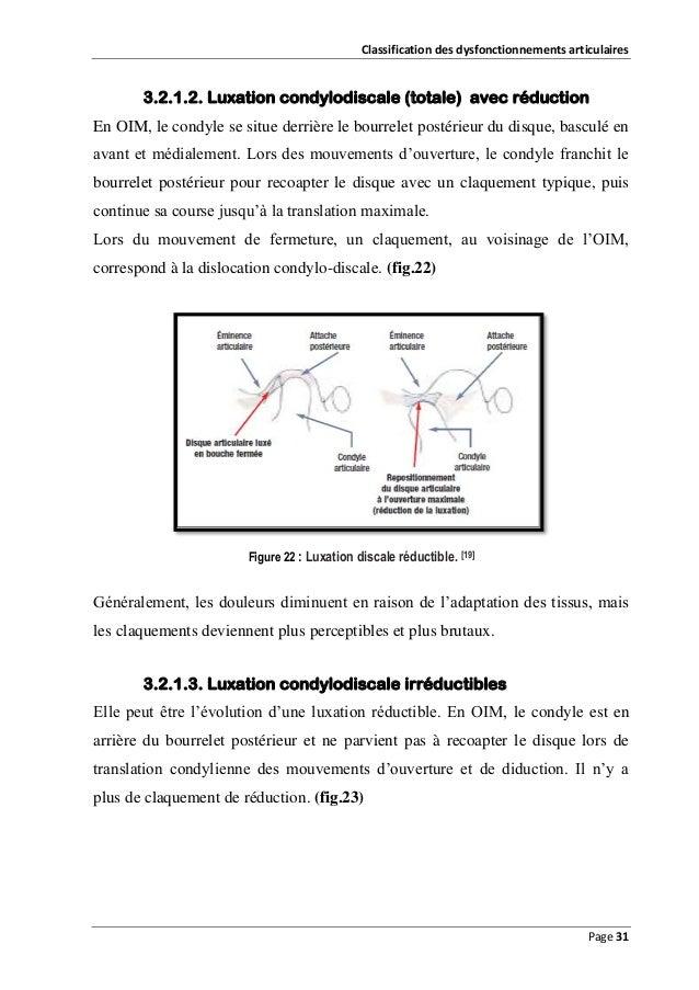 Classification des dysfonctionnements articulaires  3.2.1.2. Luxation condylodiscale (totale) avec réduction En OIM, le co...