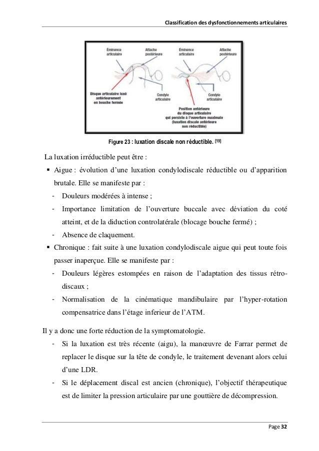 Classification des dysfonctionnements articulaires  Figure 23 : luxation discale non réductible. [19]  La luxation irréduc...
