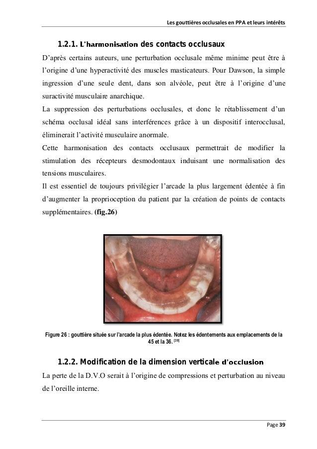 Les gouttières occlusales en PPA et leurs intérêts  1.2.1.  des contacts occlusaux  D'après certains auteurs, une perturba...