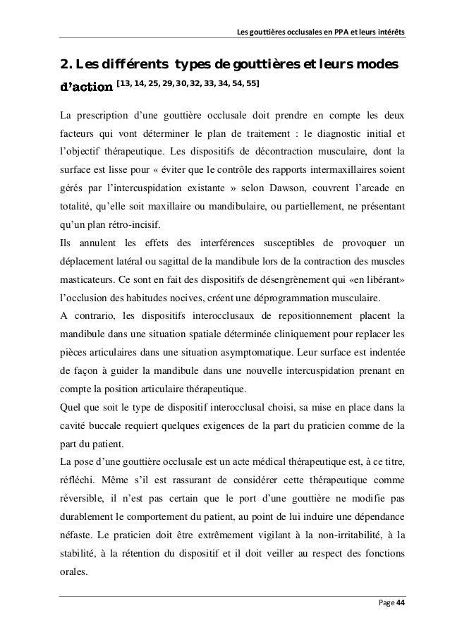 Les gouttières occlusales en PPA et leurs intérêts  2. Les différents types de gouttières et leurs modes [13, 14, 25, 29, ...