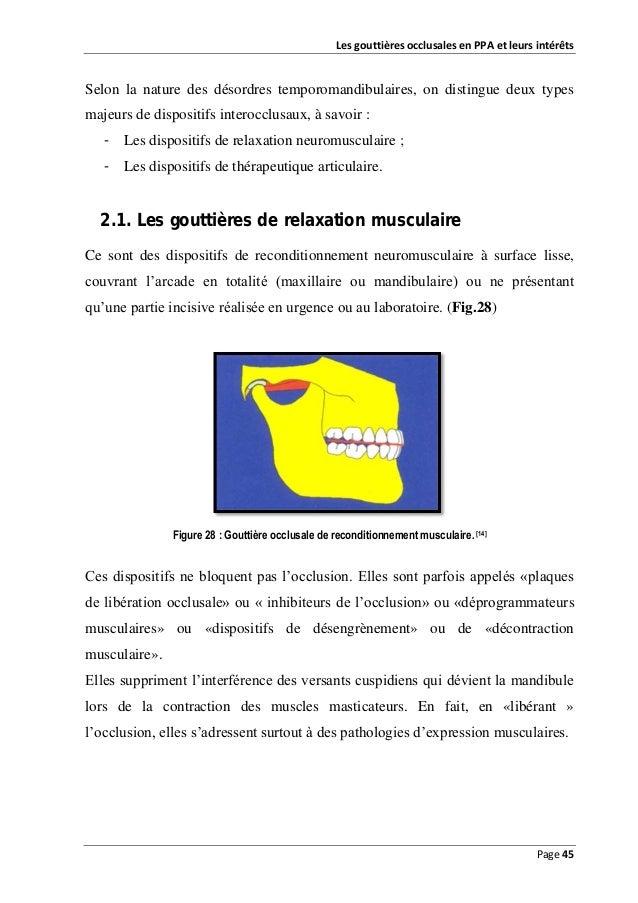 Les gouttières occlusales en PPA et leurs intérêts  Selon la nature des désordres temporomandibulaires, on distingue deux ...