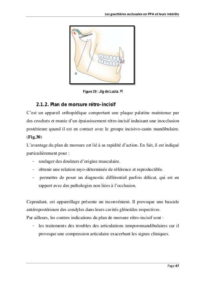 Les gouttières occlusales en PPA et leurs intérêts  Figure 29 : Jig de Lucia. [6]  2.1.2. Plan de morsure rétro-incisif C'...