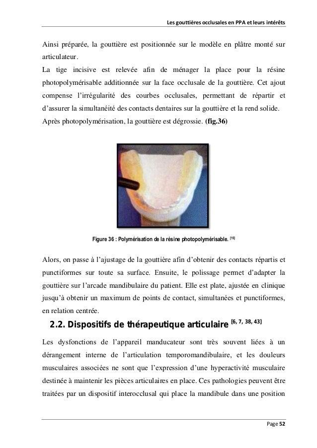 Les gouttières occlusales en PPA et leurs intérêts  Ainsi préparée, la gouttière est positionnée sur le modèle en plâtre m...