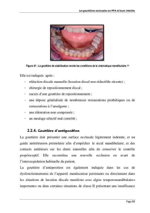 Les gouttières occlusales en PPA et leurs intérêts  Figure 41 : La gouttière de stabilisation recrée les conditions de la ...