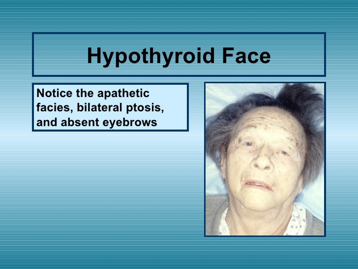 Hypothyroidism and painless facial swelling