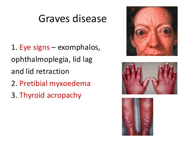 Thyroid And Parathyroid. Airport Mumbai Signs. Traffic Pennsylvania Signs. Never Signs. Separation Anxiety Disorder Signs. Mothers Day Signs. Sojak Signs Of Stroke. Gasoline Station Signs. Elderly Depresión Signs Of Stroke