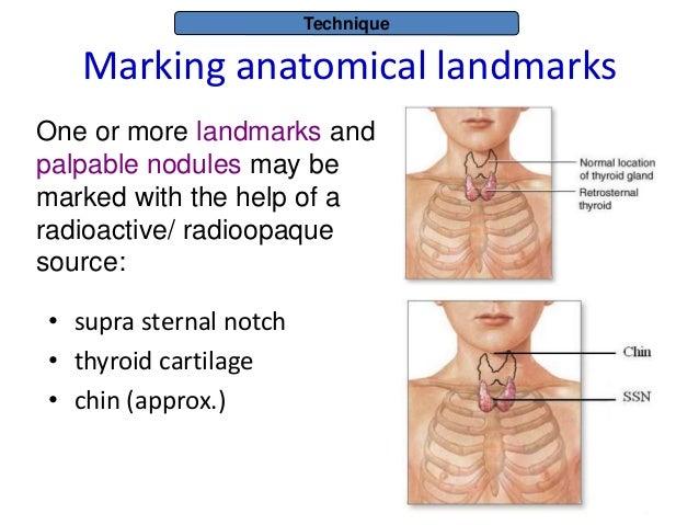 Thyroid anatomy,physiology,thyroid scintigraphy principles