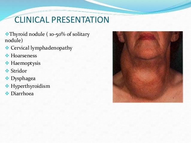 CLINICAL PRESENTATION Thyroid nodule ( 10-50% of solitary nodule)  Cervical lymphadenopathy  Hoarseness  Haemoptysis ...