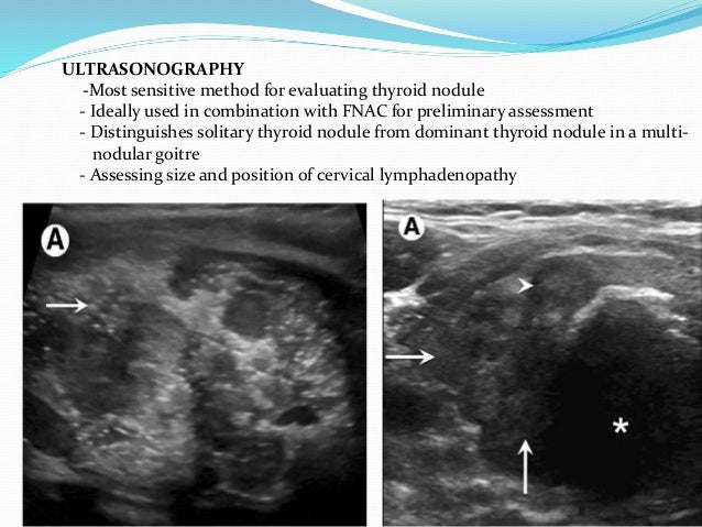 RADIONUCLIDE SCANNING TECHNETIUM 99m  Uptake by thyroid gland is low.  Scans are neither sensitive nor specific  Inform...
