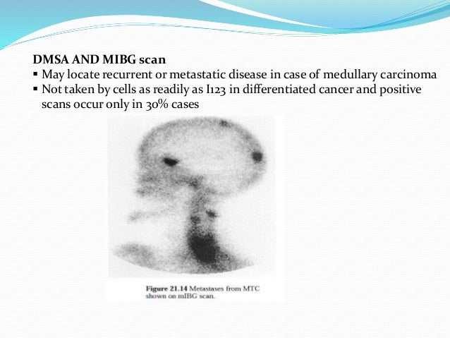 CT/MR IMAGING INDICATION NECK  Possible bilateral involvement  Extrathyroid invasion of trachea, larynx, esophagus, caro...