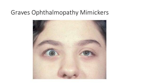 Thyroid eye disease ( Graves Ophthalmopathy )