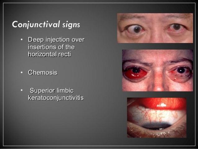 Thyroid Eye Diseases