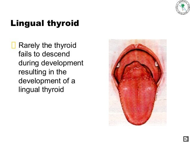 Lingual thyroid | Radiology Reference Article | Radiopaedia.org