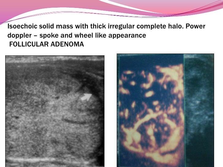Cystic degenerative changes in  adenomatous nodules<br />27<br />