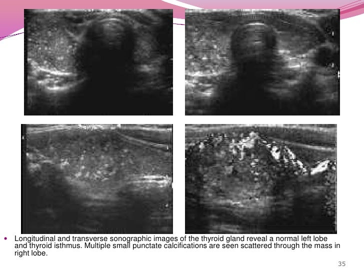 Hypoechoic solid nodule with punctate calcification<br />33<br />Isoechoic nodule & punctateechogenic foci within it<br />