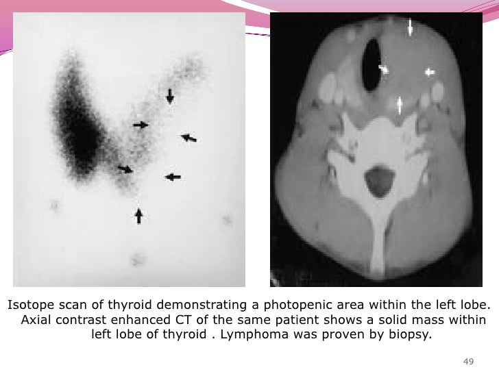 Lymphoma<br />4% of all thyroid malignancies.<br />Mostly non-Hodgkin's type<br />Elder females <br />In 70-80% cases aris...