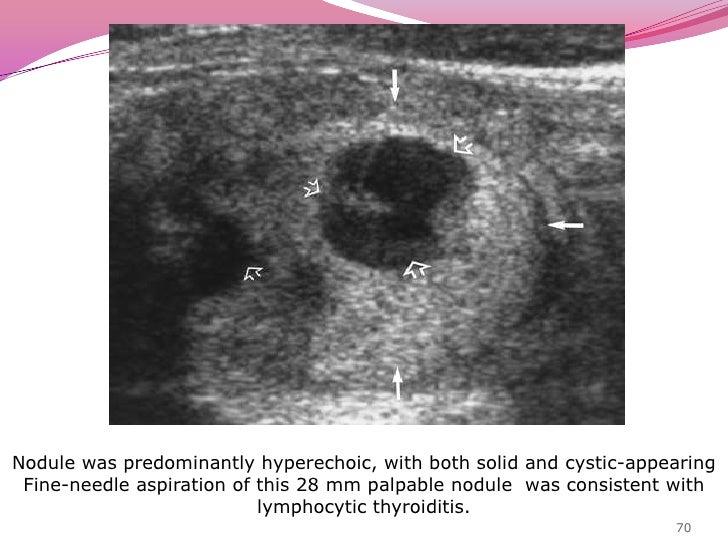 66<br />Sagittal sonogram of left lobe of thyroid shows solid,<br /> predominately hyperechoic, poorly marginated nodule i...
