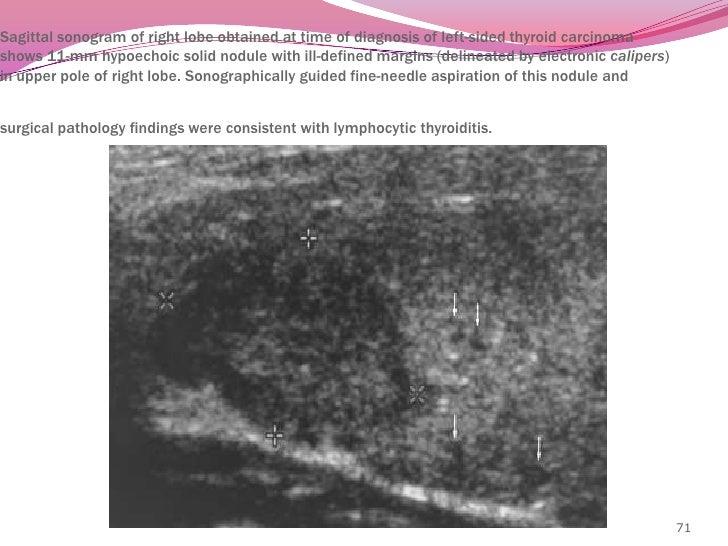 Chronic autoimmune lymphocytic (Hashimoto's) thyroiditis<br />As a painless diffuse enlargement of thyroid <br />often ass...