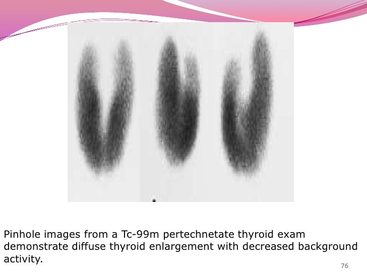 Painless thyroiditis<br />Thyroid enlargement in early phase followed by hypothyroidism.<br />Clinical findings are simila...