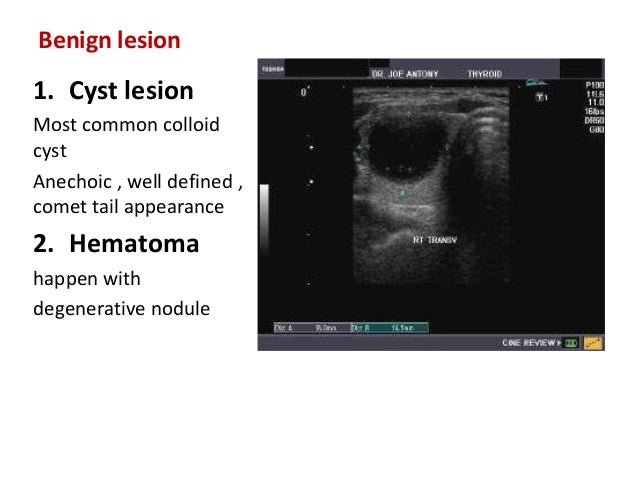 thyroid lesions � evaluation with sonography