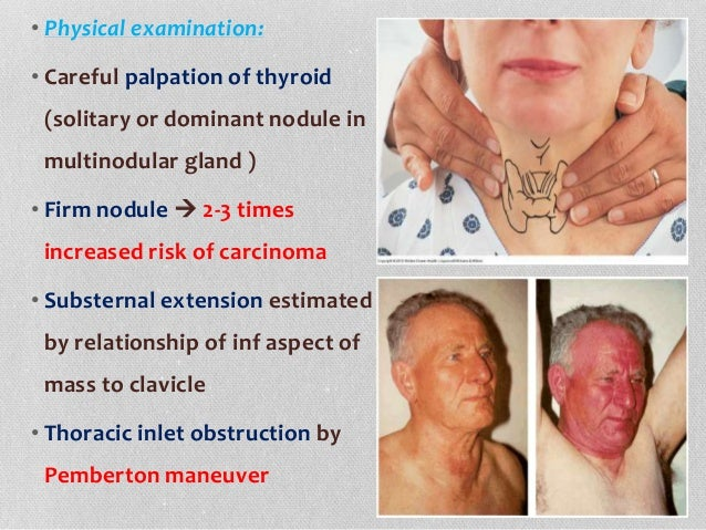 Approach To Thyroid Nodule