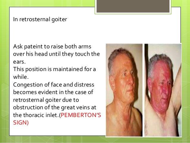 Apa dia restrosternal tiroid? Bahaya ke?