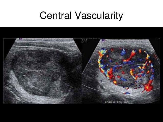 Thyroid Nodules And Cancer
