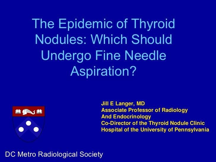The Epidemic Of Thyroid Nodules Which Should Undergo Fine Needle Asp