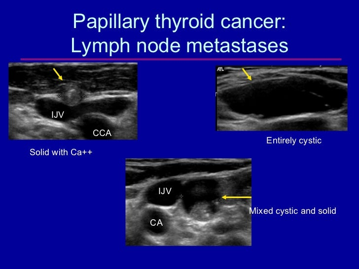 The Epidemic Of Thyroid Nodules Which Should Undergo Fine Needle Asp