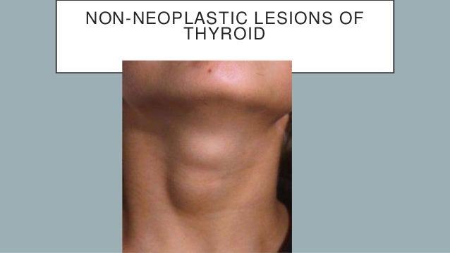 Thyroid Non Neoplastic Lesions