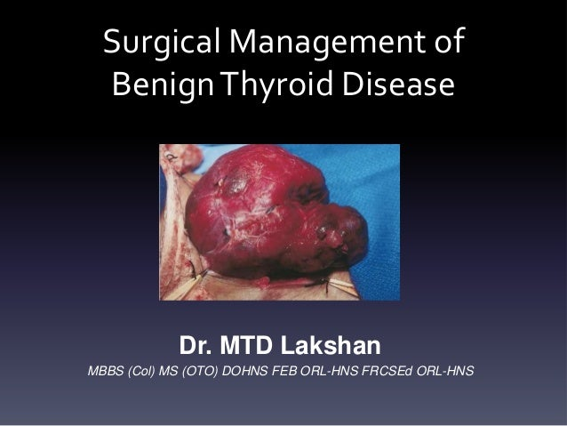 Surgical Management of Benign Thyroid Disease  Dr. MTD Lakshan MBBS (Col) MS (OTO) DOHNS FEB ORL-HNS FRCSEd ORL-HNS
