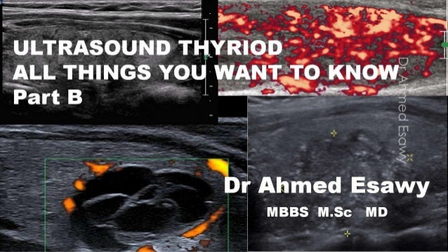 Thyroid ultrasound all things you should know part b