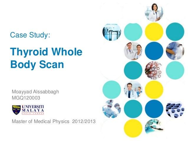 Case Study:Thyroid WholeBody ScanMoayyad AlssabbaghMGQ120003Master of Medical Physics 2012/2013