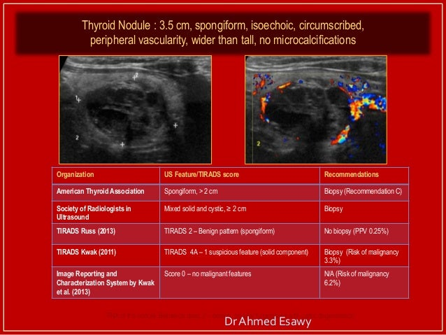 Tirads Thyroid Nodule Imaging Reporting And Data System Dr Ahmed E