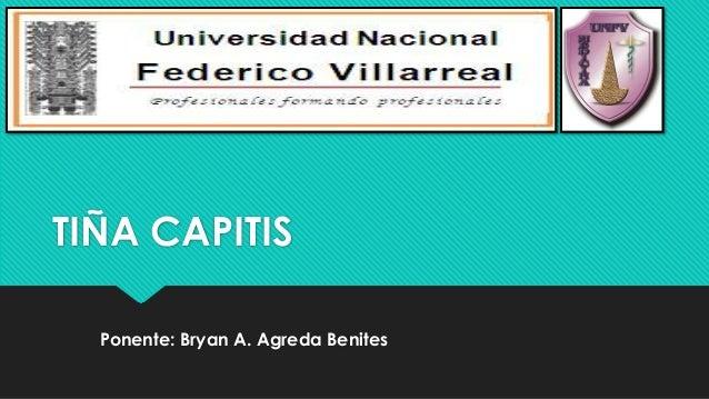 TIÑA CAPITIS Ponente: Bryan A. Agreda Benites