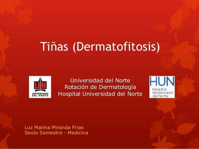 Tiñas (Dermatofitosis) Luz Marina Miranda Frias Sexto Semestre - Medicina Universidad del Norte Rotación de Dermatología H...