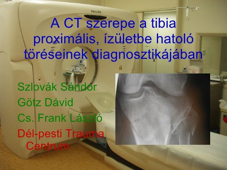 A CT szerepe a tibia proximális, ízületbe hatoló töréseinek diagnosztikájában <ul><li>Szlovák Sándor </li></ul><ul><li>Göt...