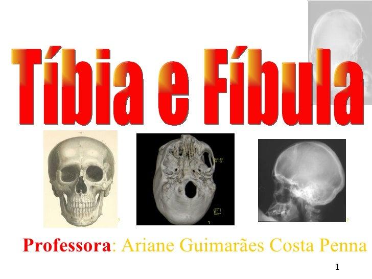 <ul><ul><li>Professora : Ariane Guimarães Costa Penna </li></ul></ul>Tíbia e Fíbula 1 3 2