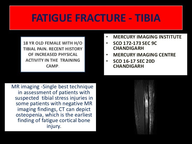FATIGUE FRACTURE - TIBIA<br />MERCURY IMAGING INSTITUTE <br />SCO 172-173 SEC 9C  CHANDIGARH<br />MERCURY IMAGING CENTRE <...
