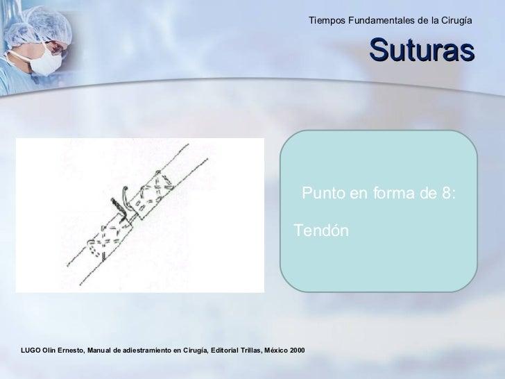 LUGO Olin Ernesto, Manual de adiestramiento en Cirugía, Editorial Trillas, México 2000  Punto en forma de 8: Tendón Sutura...