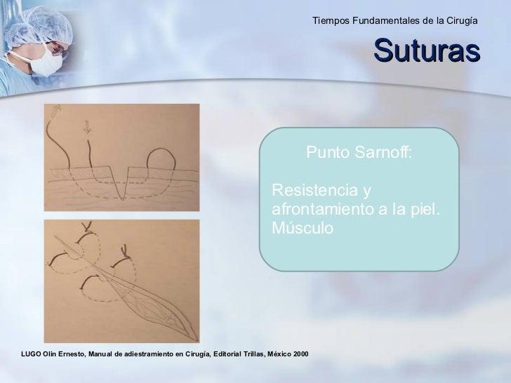 LUGO Olin Ernesto, Manual de adiestramiento en Cirugía, Editorial Trillas, México 2000  Punto Sarnoff: Resistencia y afron...