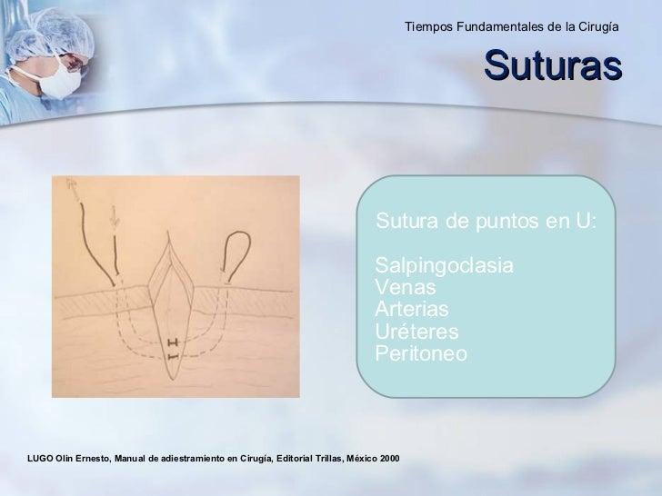 LUGO Olin Ernesto, Manual de adiestramiento en Cirugía, Editorial Trillas, México 2000  Sutura de puntos en U : Salpingocl...