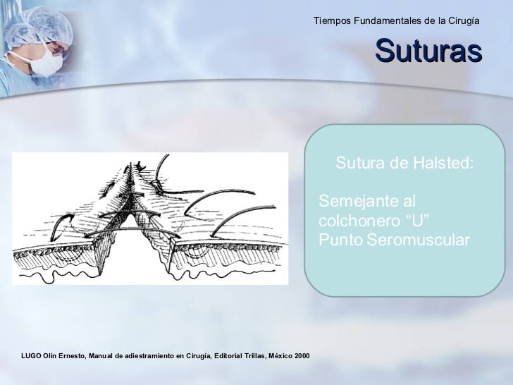 LUGO Olin Ernesto, Manual de adiestramiento en Cirugía, Editorial Trillas, México 2000  Suturas Tiempos Fundamentales de l...