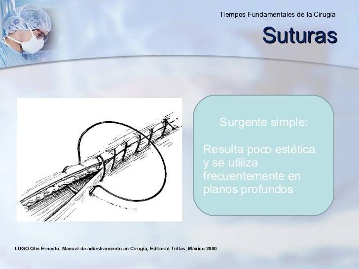 LUGO Olin Ernesto, Manual de adiestramiento en Cirugía, Editorial Trillas, México 2000  Surgente simple : Resulta poco est...