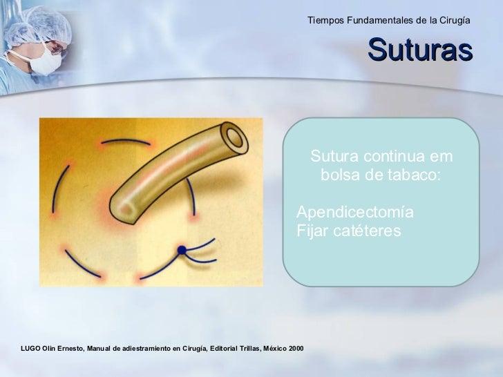 Sutura continua em bolsa de tabaco : Apendicectomía  Fijar catéteres LUGO Olin Ernesto, Manual de adiestramiento en Cirugí...