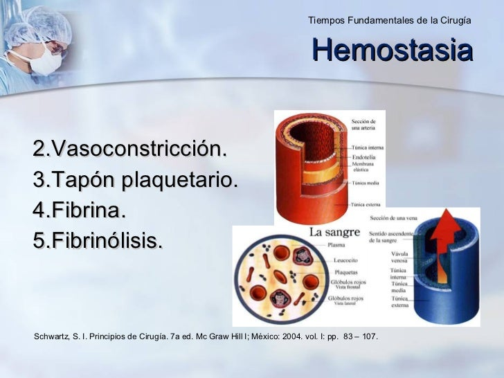 <ul><li>Vasoconstricción. </li></ul><ul><li>Tapón plaquetario. </li></ul><ul><li>Fibrina. </li></ul><ul><li>Fibrinólisis. ...