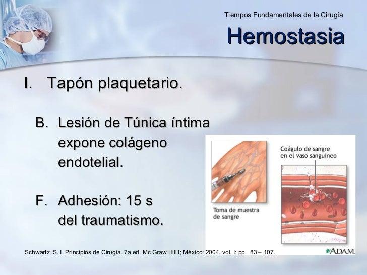 <ul><li>Tapón plaquetario. </li></ul><ul><ul><li>Lesión de Túnica íntima </li></ul></ul><ul><ul><li>expone colágeno </li><...