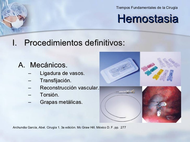 <ul><li>Procedimientos definitivos: </li></ul><ul><ul><li>Mecánicos. </li></ul></ul><ul><ul><ul><ul><li>Ligadura de vasos....