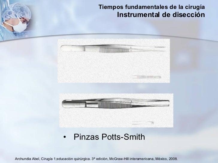 <ul><li>Pinzas Potts-Smith </li></ul>Archundia Abel, Cirugía 1;educación quirúrgica. 3ª edición, McGraw-Hill interamerican...